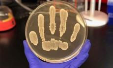 Βακτήρια πάνω στο δέρμα «φρενάρουν» τα καρκινικά κύτταρα